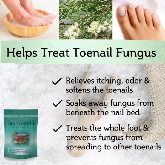 Your feet can benefit from tea tree oil - Tea Tree Oil Therapeutic Foot Soak by Purely Northwest