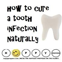 How to cure a tooth infection naturally